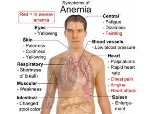 gejala-anemia
